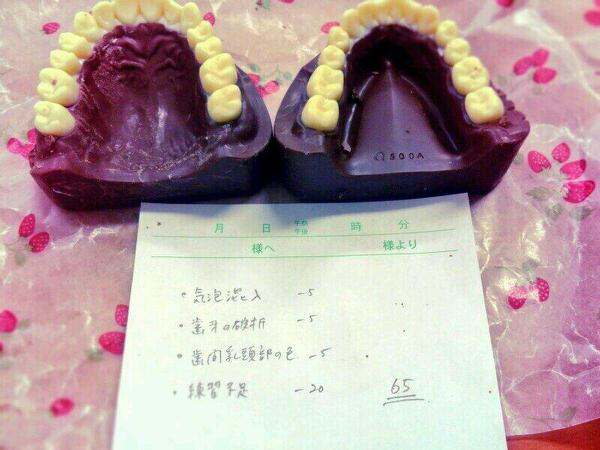 Twitter tooth chocolate 2
