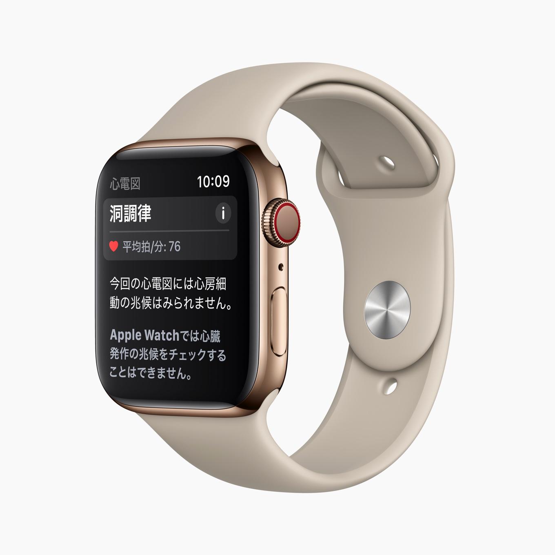 Apple_watch-ecg-result-sinusrhythm_012021